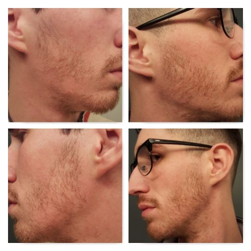 minoxidil beard before and after